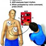 AED on victim